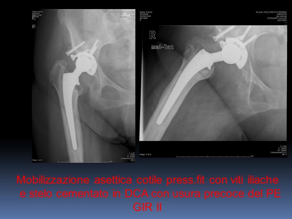 Mobilizzazione asettica cotile press.fit con viti iliache