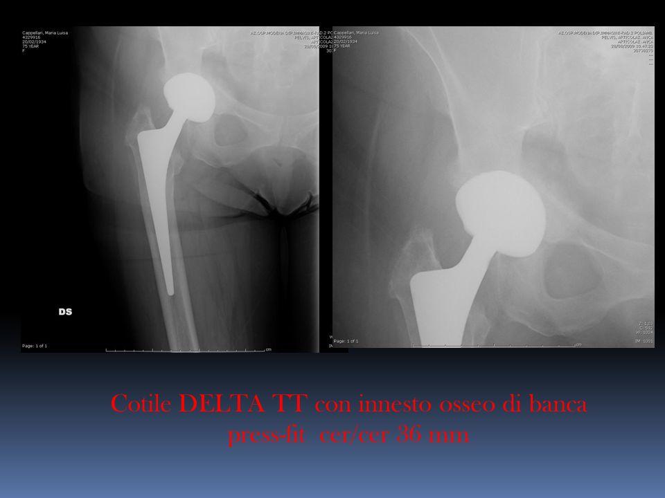 Cotile DELTA TT con innesto osseo di banca