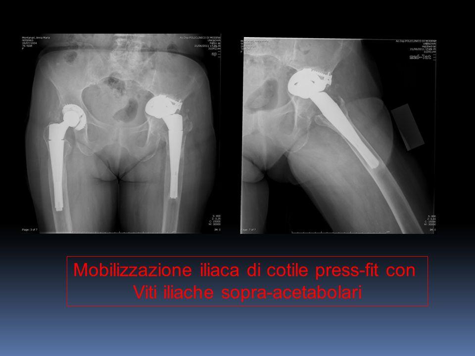 Mobilizzazione iliaca di cotile press-fit con