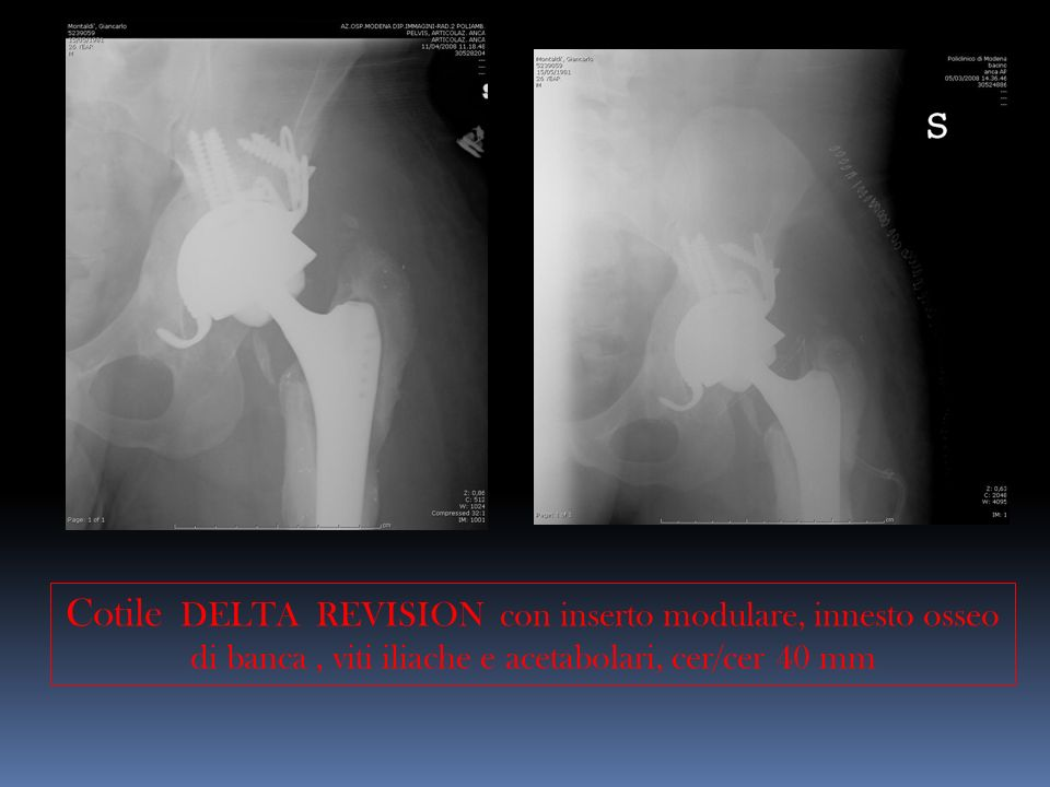 Cotile DELTA REVISION con inserto modulare, innesto osseo