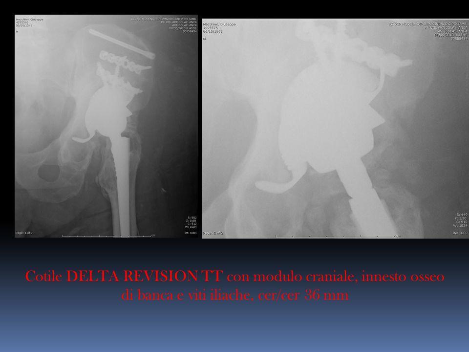 Cotile DELTA REVISION TT con modulo craniale, innesto osseo