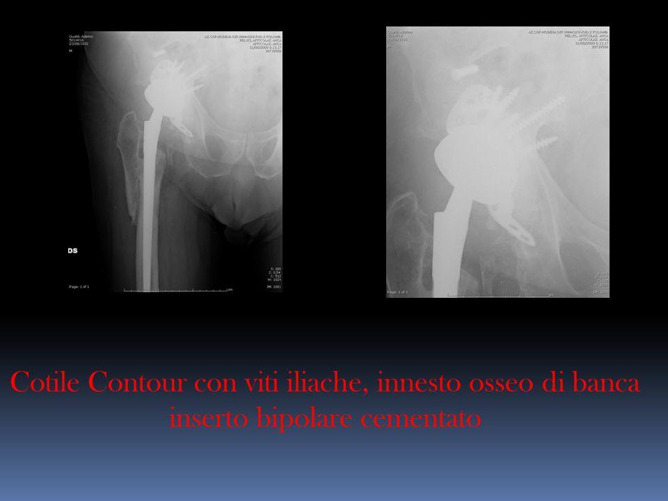 Cotile Contour con viti iliache, innesto osseo di banca