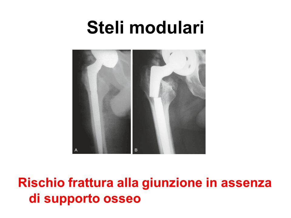 Steli modulari Rischio frattura alla giunzione in assenza di supporto osseo