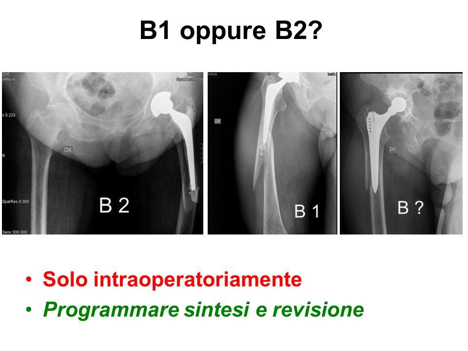 B1 oppure B2 B 2 Solo intraoperatoriamente