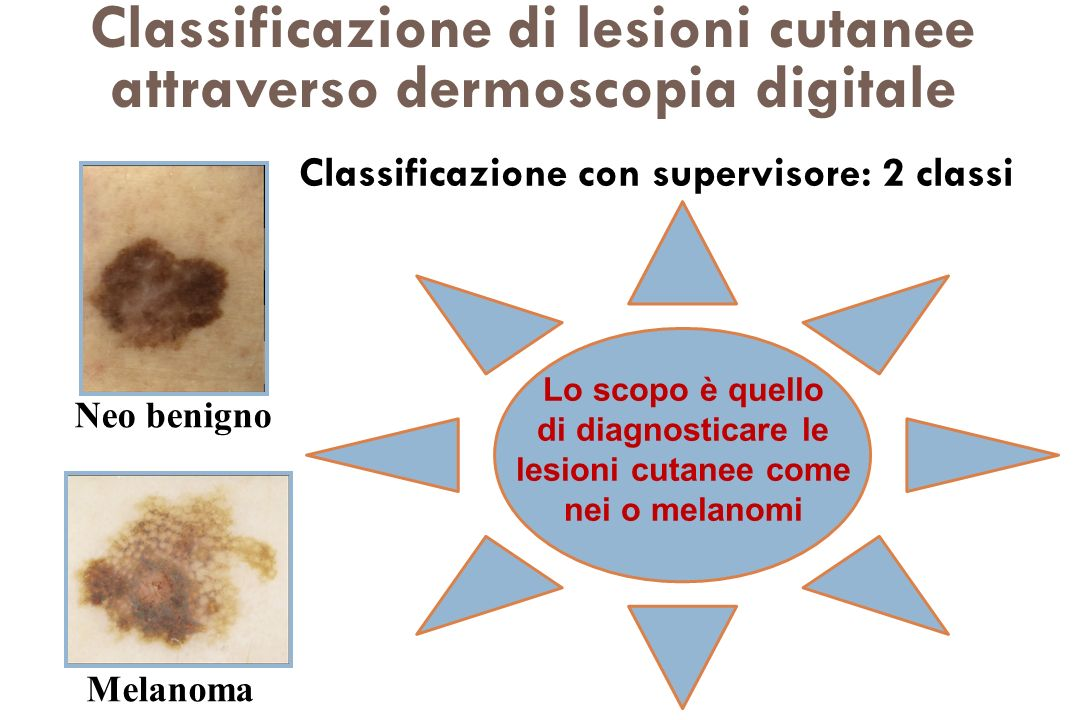Classificazione di lesioni cutanee attraverso dermoscopia digitale
