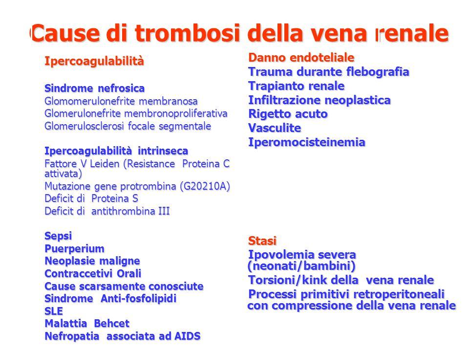 Cause di trombosi della vena renale