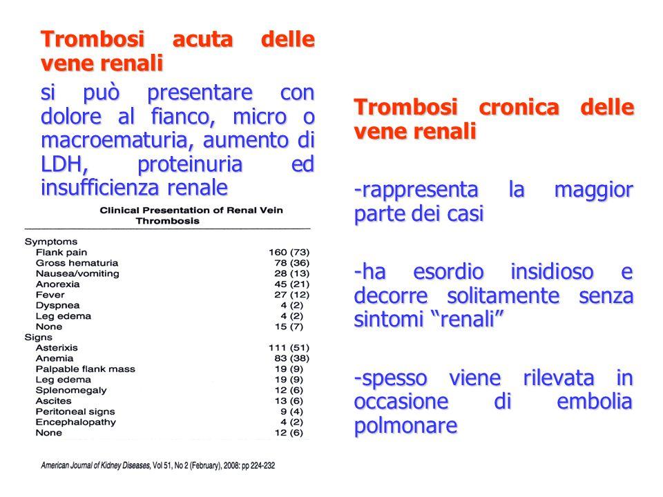 Trombosi acuta delle vene renali