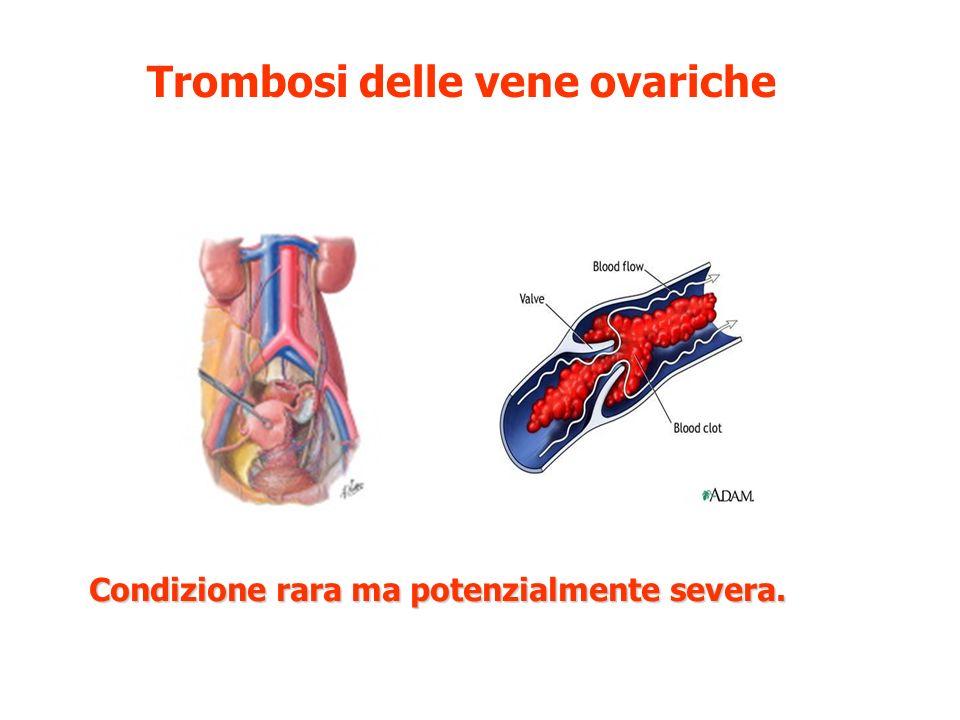 Trombosi delle vene ovariche