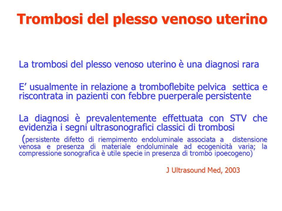 Trombosi del plesso venoso uterino