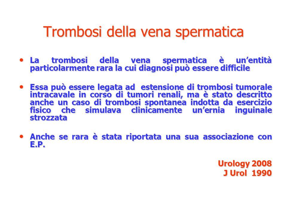 Trombosi della vena spermatica