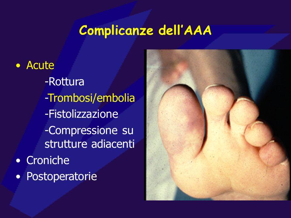 Complicanze dell'AAA Acute -Rottura -Trombosi/embolia -Fistolizzazione