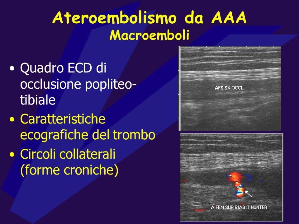Ateroembolismo da AAA Macroemboli