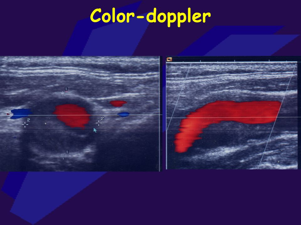 Color-doppler