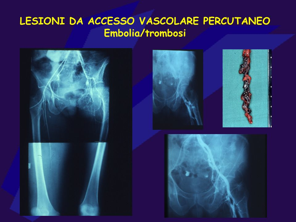 LESIONI DA ACCESSO VASCOLARE PERCUTANEO Embolia/trombosi