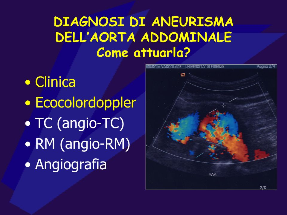 DIAGNOSI DI ANEURISMA DELL'AORTA ADDOMINALE Come attuarla