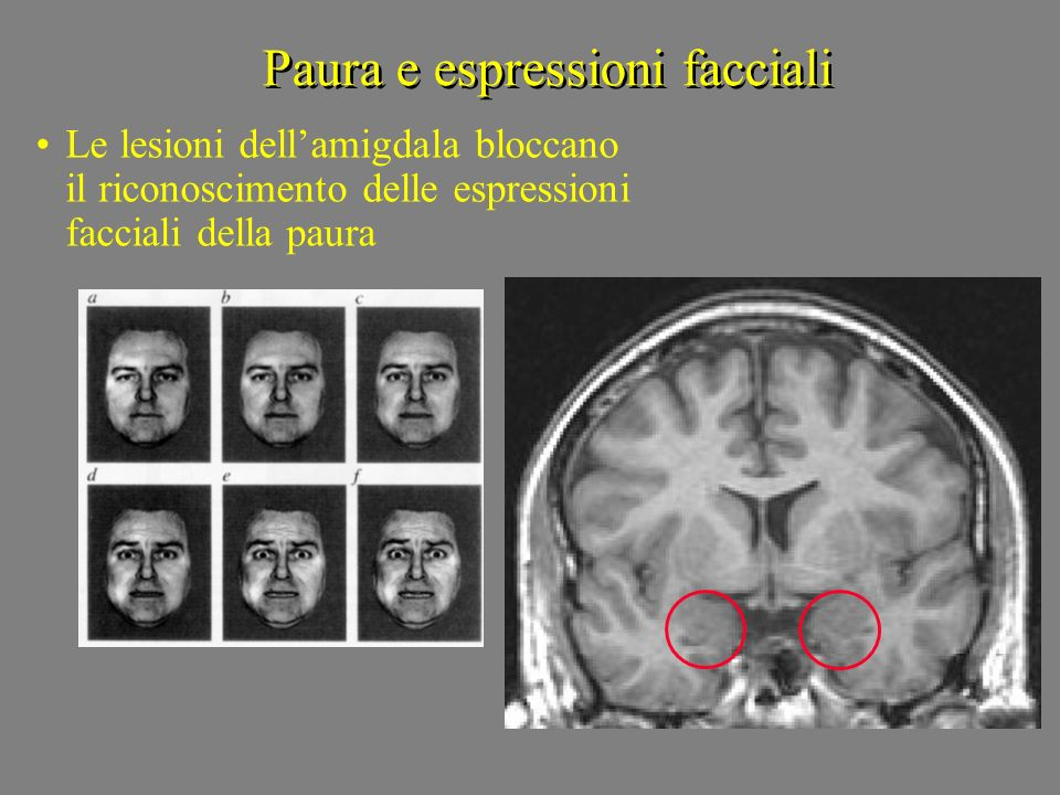 Paura e espressioni facciali