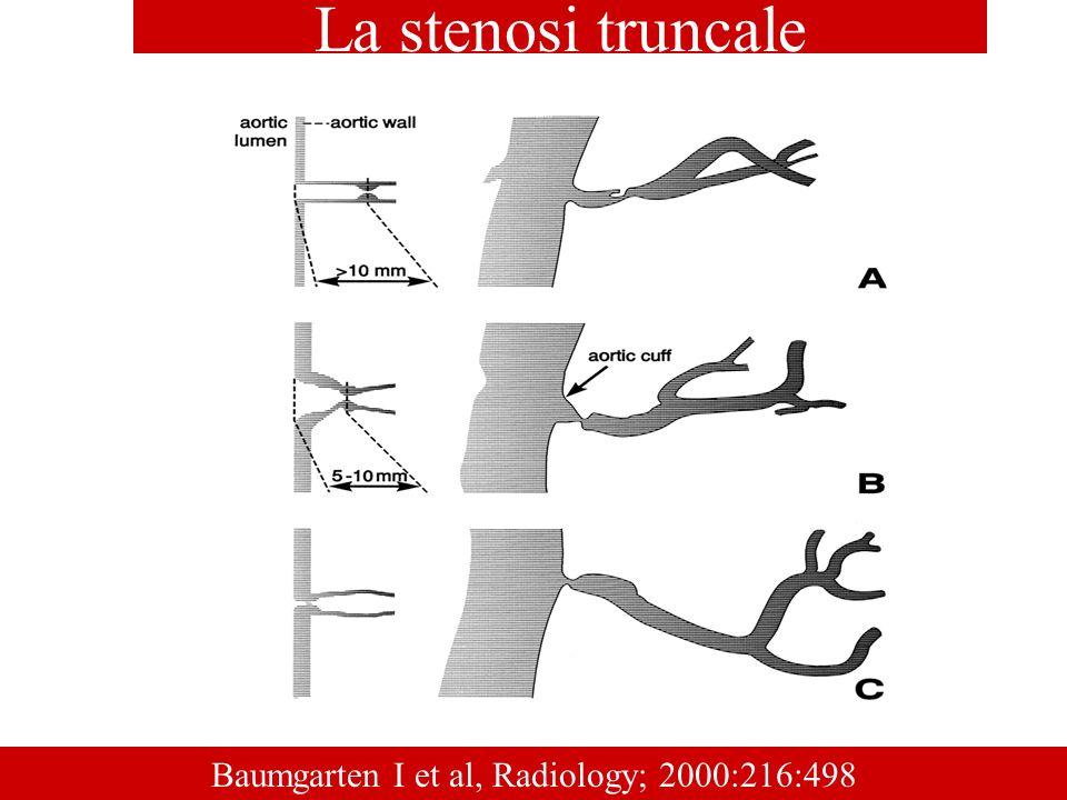 Baumgarten I et al, Radiology; 2000:216:498