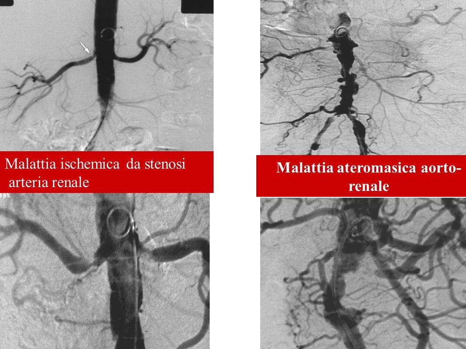 Malattia ateromasica aorto-renale