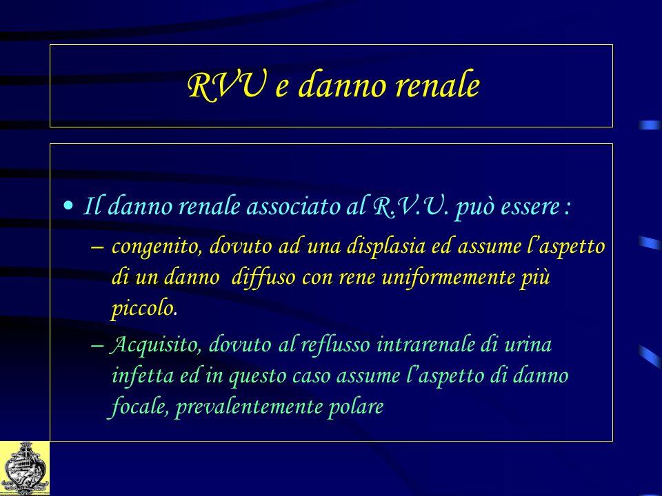 RVU e danno renale Il danno renale associato al R.V.U. può essere :