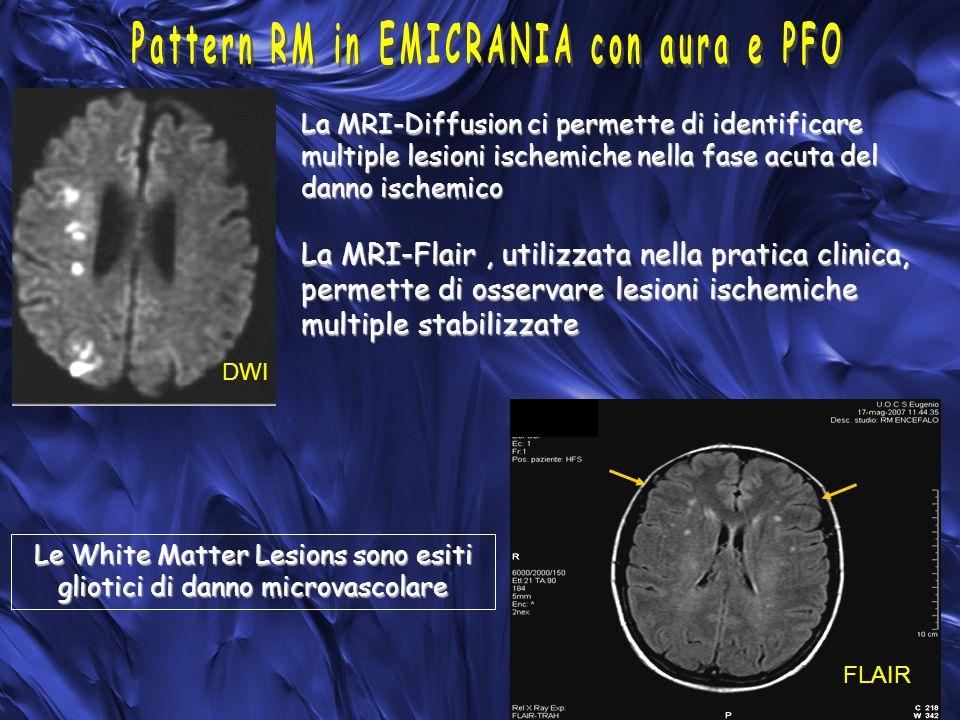 Pattern RM in EMICRANIA con aura e PFO
