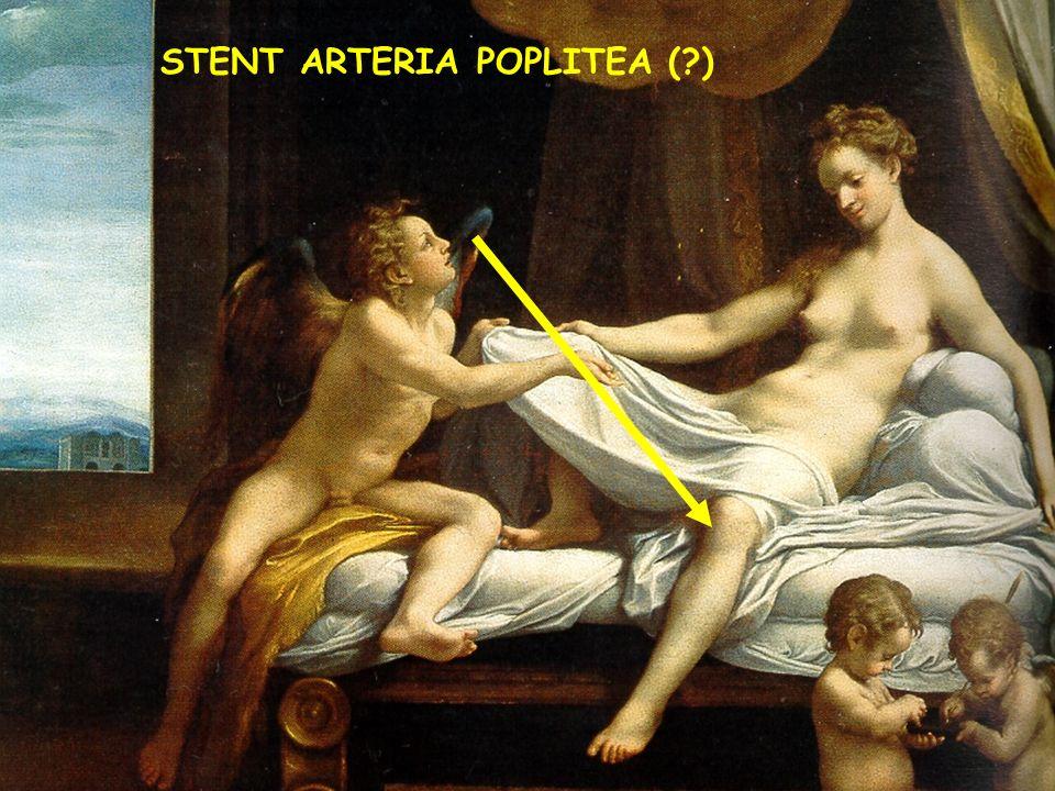 STENT ARTERIA POPLITEA ( )