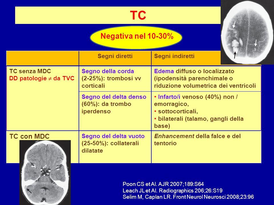 TC Negativa nel 10-30% TC con MDC Segni diretti Segni indiretti