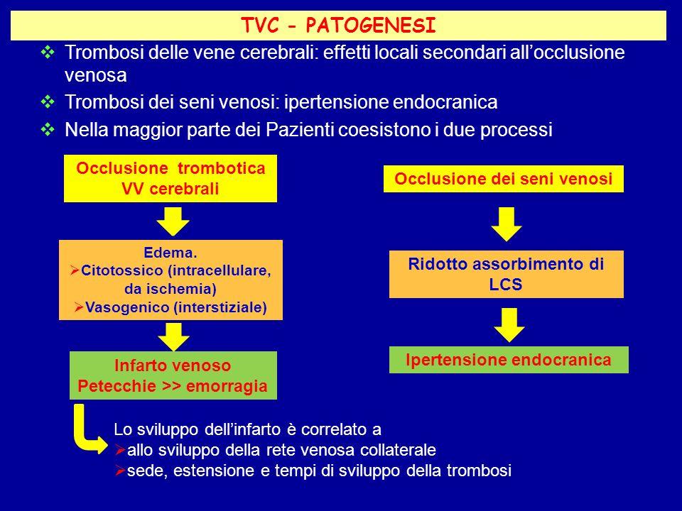Trombosi dei seni venosi: ipertensione endocranica