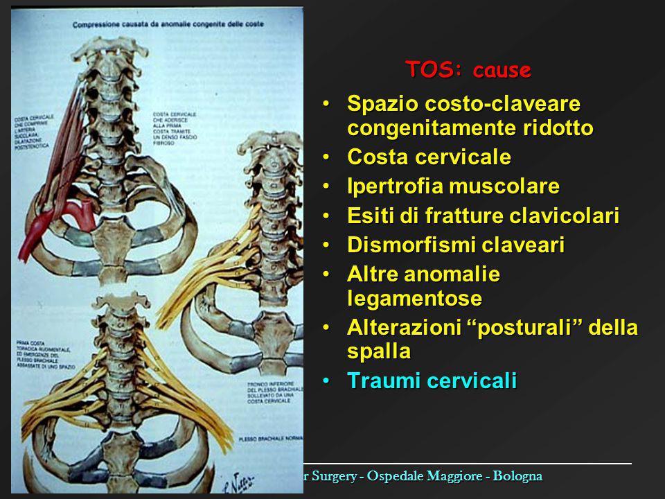 TOS: cause Spazio costo-claveare congenitamente ridotto. Costa cervicale. Ipertrofia muscolare. Esiti di fratture clavicolari.
