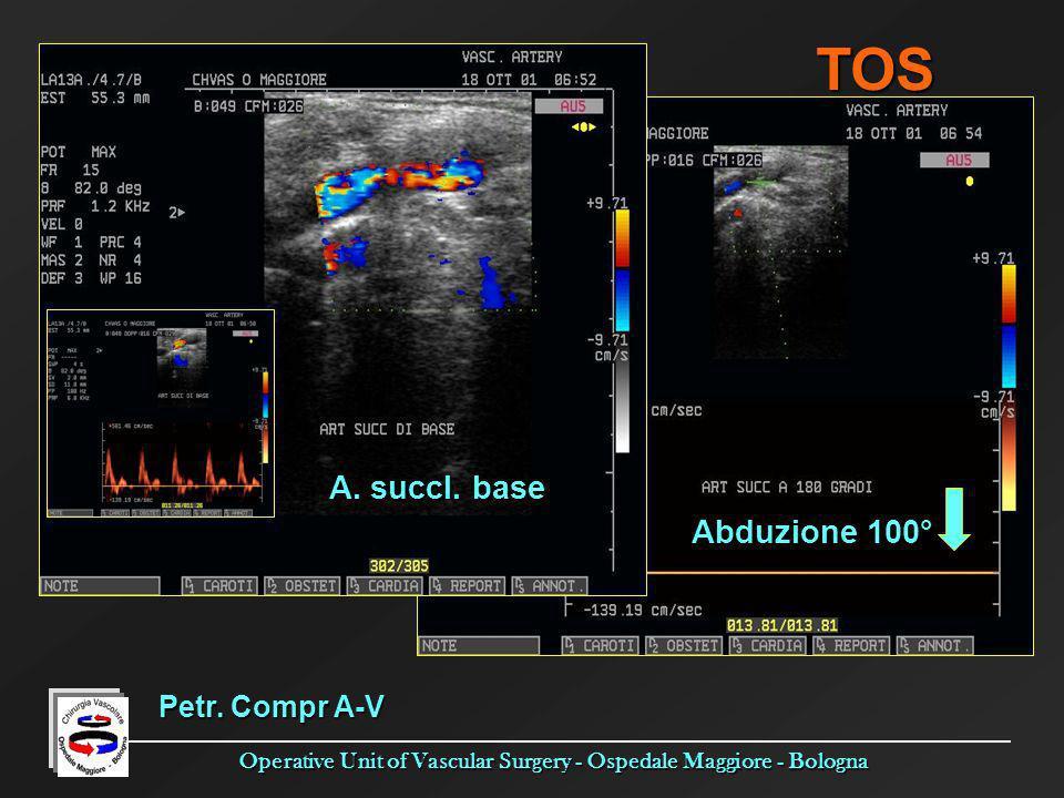TOS A. succl. base Abduzione 100° Petr. Compr A-V