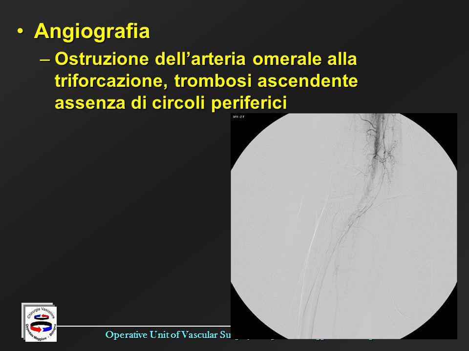 Angiografia Ostruzione dell'arteria omerale alla triforcazione, trombosi ascendente assenza di circoli periferici.
