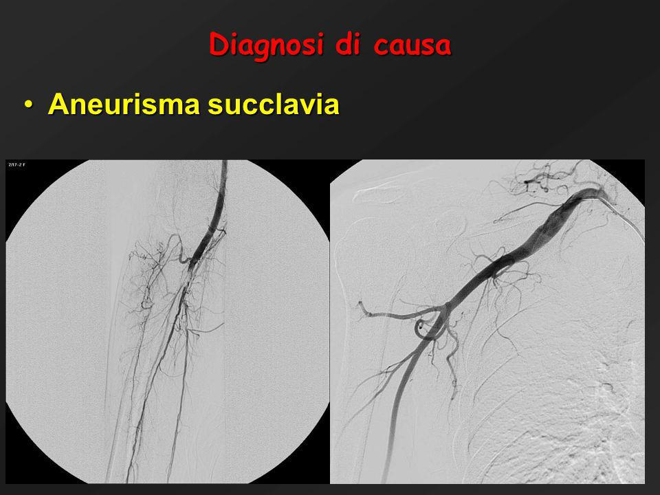 Diagnosi di causa Aneurisma succlavia