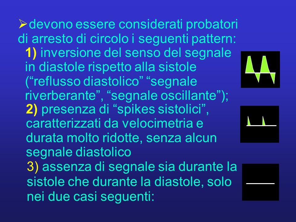 1) inversione del senso del segnale in diastole rispetto alla sistole ( reflusso diastolico segnale riverberante , segnale oscillante );