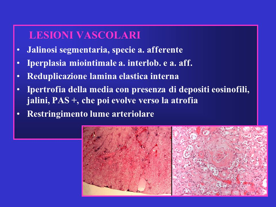 LESIONI VASCOLARI Jalinosi segmentaria, specie a. afferente