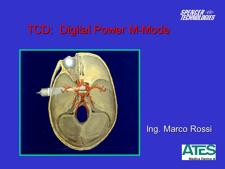 TCD: Digital Power M-Mode