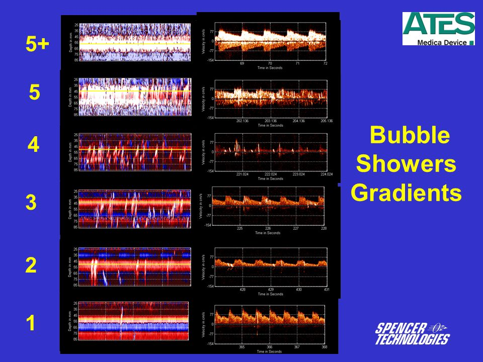 Bubble Showers Gradients