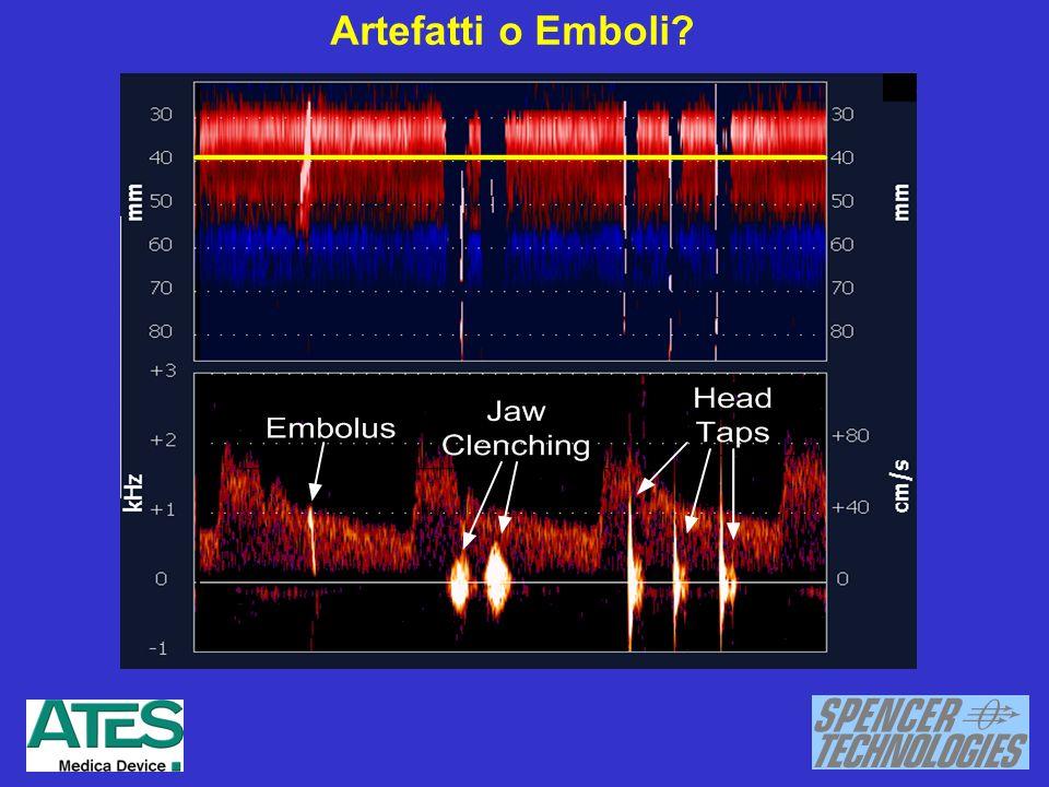 Artefatti o Emboli