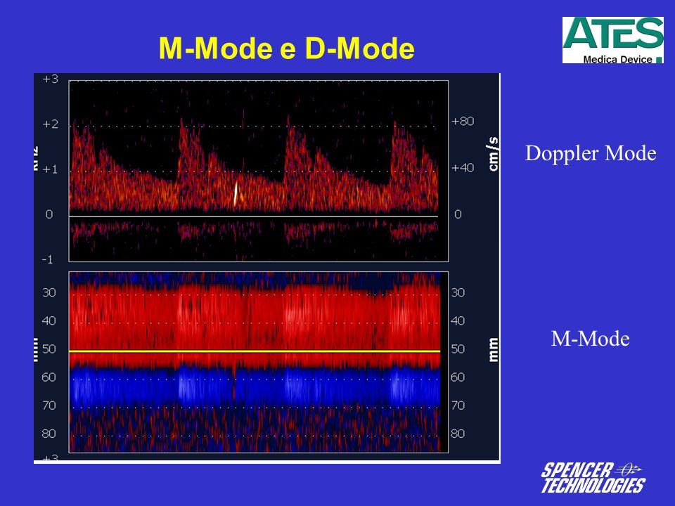 M-Mode e D-Mode Doppler Mode M-Mode
