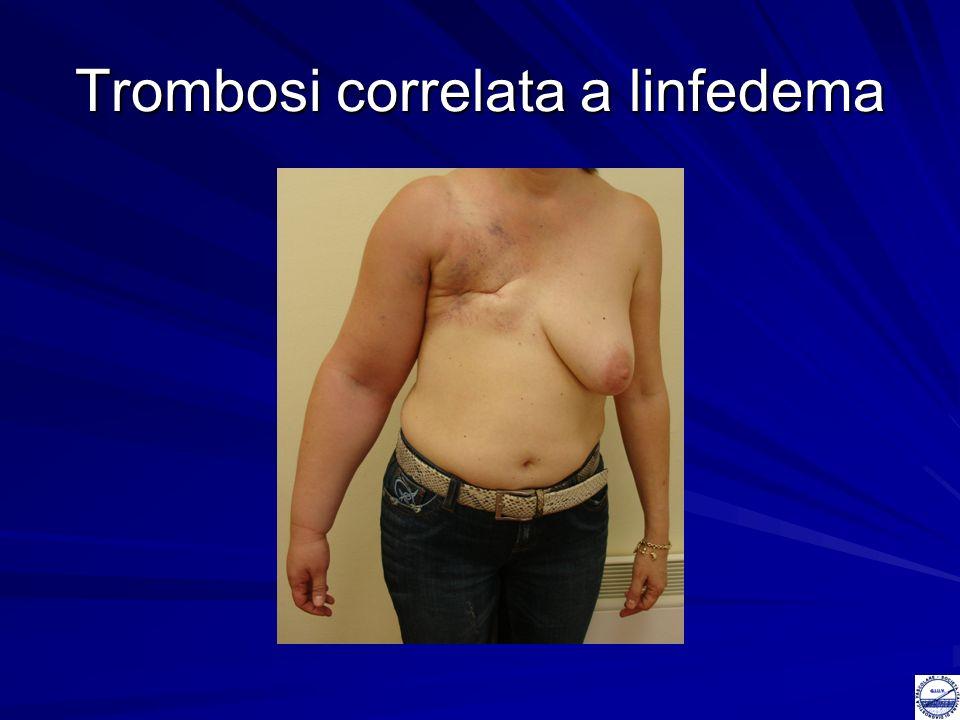 Trombosi correlata a linfedema