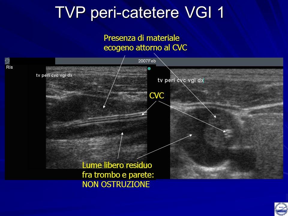 TVP peri-catetere VGI 1 Presenza di materiale ecogeno attorno al CVC