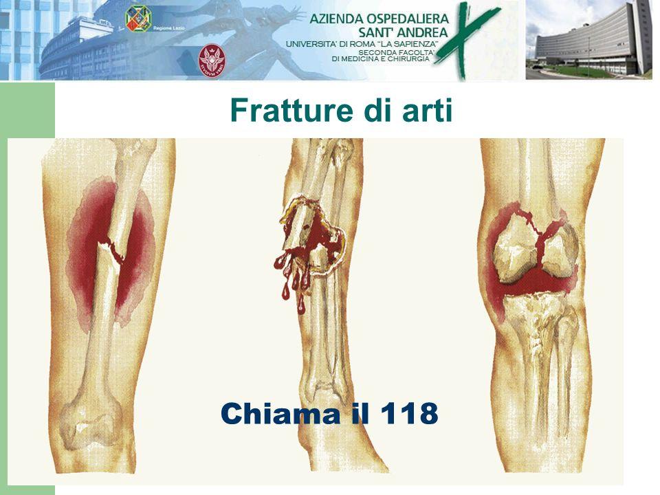 Fratture di arti Chiama il 118