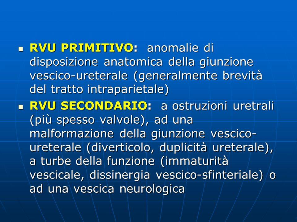 RVU PRIMITIVO: anomalie di disposizione anatomica della giunzione vescico-ureterale (generalmente brevità del tratto intraparietale)