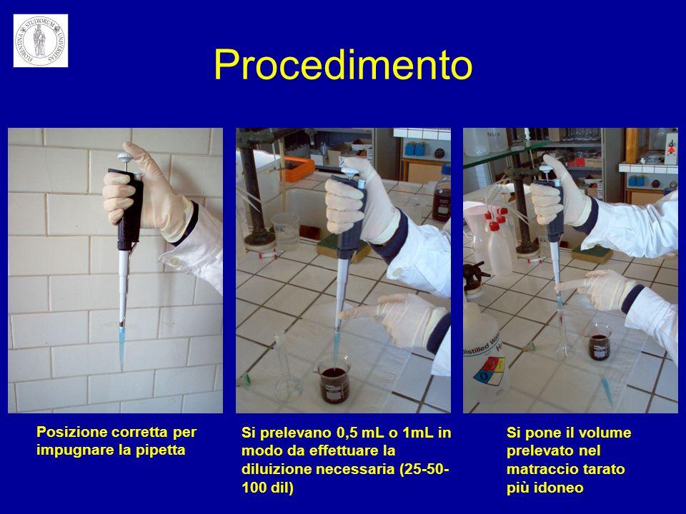 Procedimento Posizione corretta per impugnare la pipetta