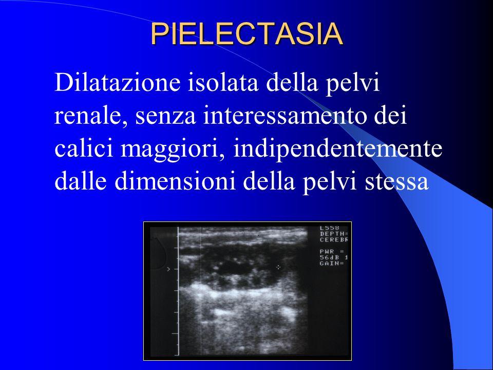 PIELECTASIA Dilatazione isolata della pelvi renale, senza interessamento dei calici maggiori, indipendentemente dalle dimensioni della pelvi stessa.
