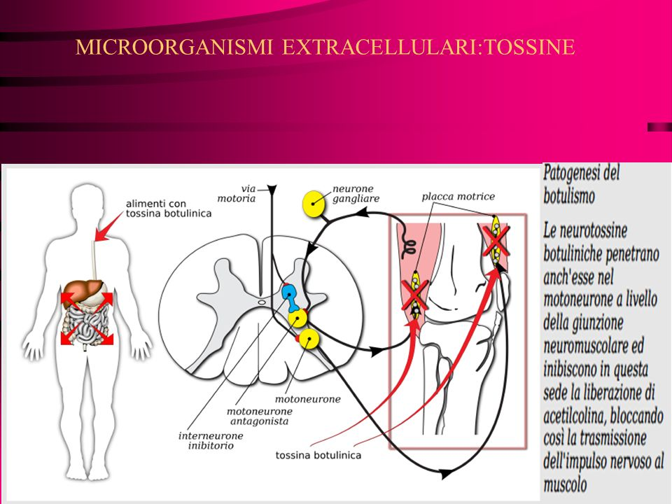 MICROORGANISMI EXTRACELLULARI:TOSSINE