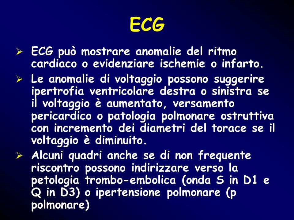 ECG ECG può mostrare anomalie del ritmo cardiaco o evidenziare ischemie o infarto.