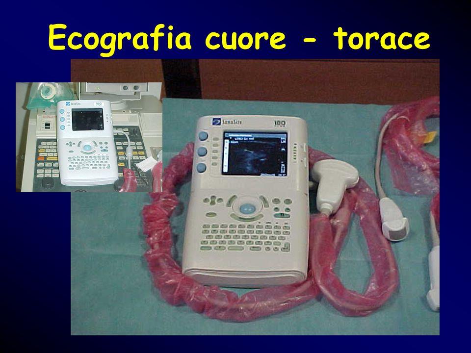 Ecografia cuore - torace