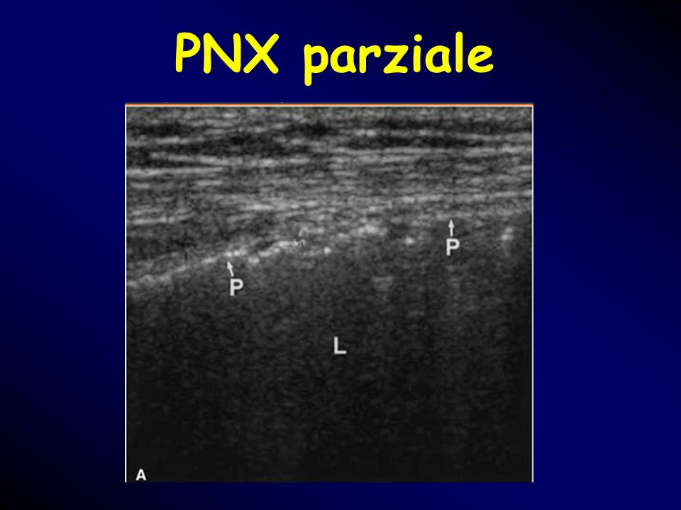 PNX parziale