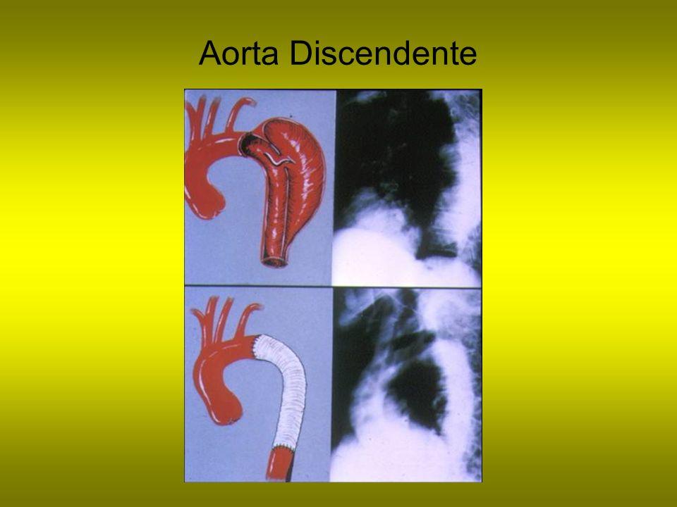 Aorta Discendente