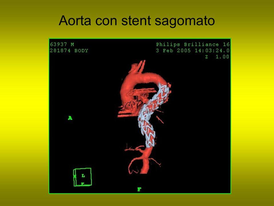 Aorta con stent sagomato