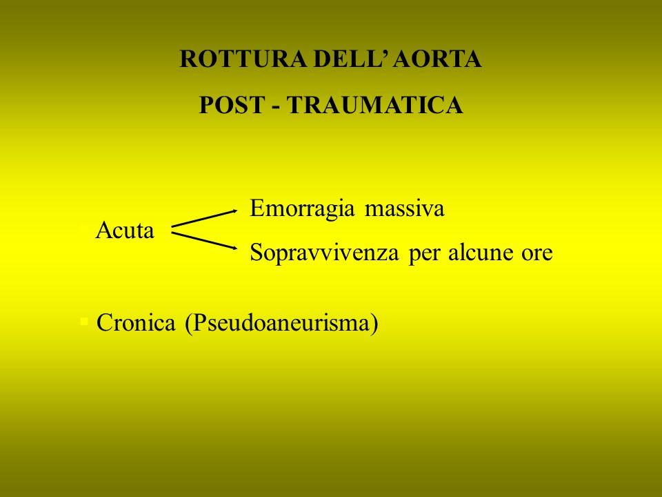 ROTTURA DELL' AORTA POST - TRAUMATICA. Emorragia massiva.